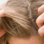 Cuidado especial: não se esqueça do couro cabeludo